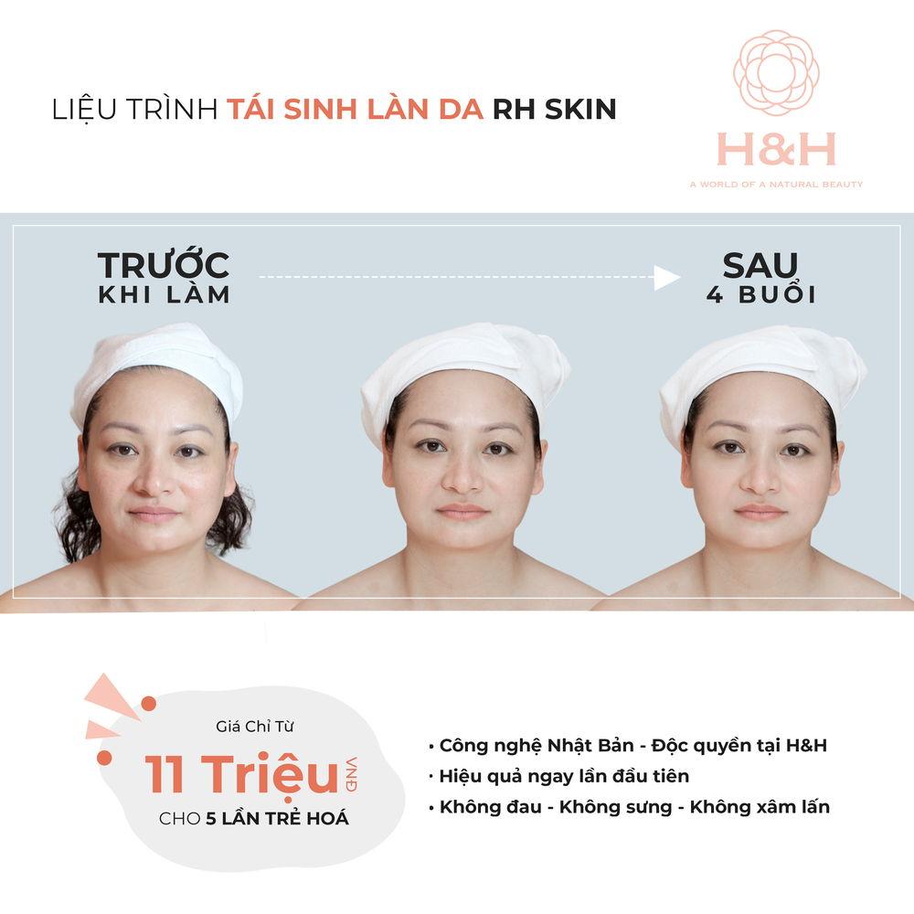https://www.hnhmedi.com/RH - SKIN - Thành tựu siêu tái sinh trẻ hoá làn da của Nhật Bản - lần đầu có mặt tại Việt Nam